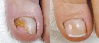 nagelreparatie-2